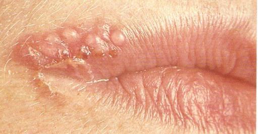 Правилно и грешно при лечението на псориазис - какво трябва да знаете?